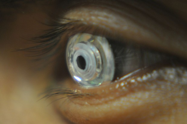 Telescopic contact lens